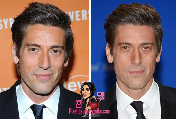 David Muir Plastic Surgery