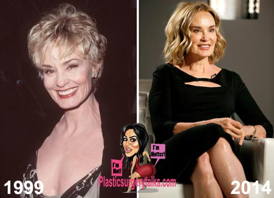 Jessica Lange Plastic Surgery Before & After