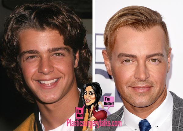 Joey Lawrence Plastic Surgery