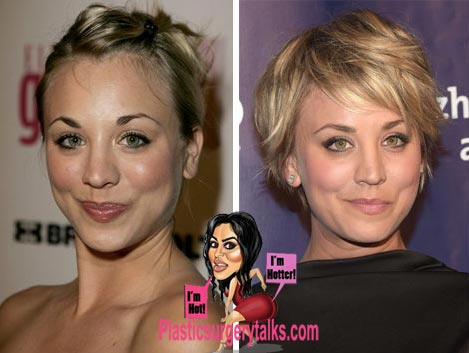 Kaley Cuoco Nose Job