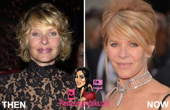 Kate Capshaw Plastic Surgery