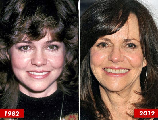 Sally Field Plastic Surgery Before & After