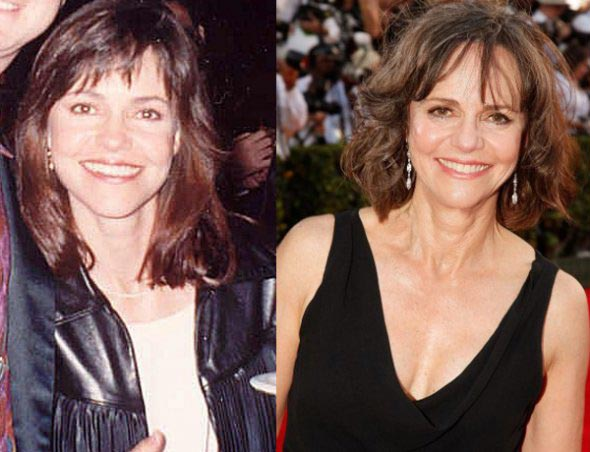 Sally Field Plastic Surgery