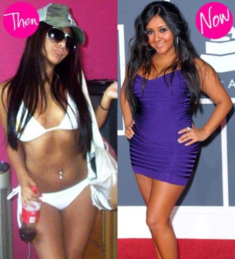 Snooki Breast Implants