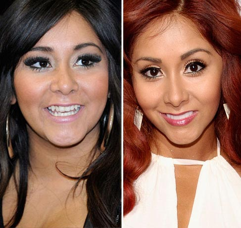 Snooki Plastic Surgery Before & After
