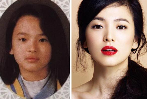 song hye kyo surgery