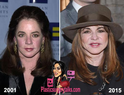 Stockard Channing Plastic Surgery