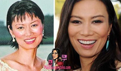 Wendi Deng Plastic Surgery Photos