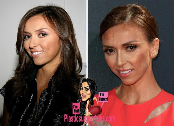 Giuliana Rancic Plastic Surgery