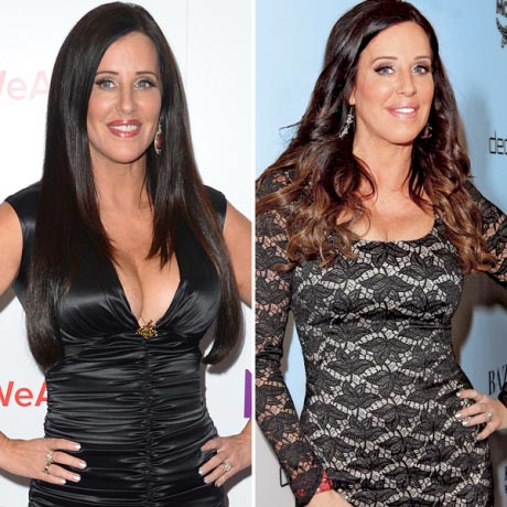 Patti Stanger Plastic Surgery Before & After